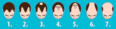 hair loss baldness levels