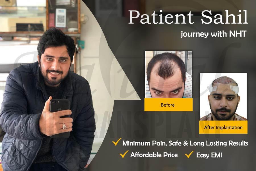 Best Hair Transplant Fue Hair Transplant Hair Transplant Cost In India