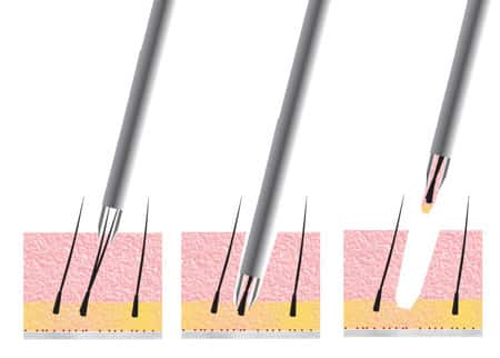 FUE Hair Transplant in Delhi