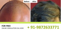 Hair Transplant Before After Results