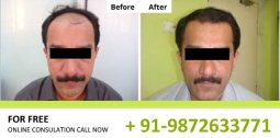 FUE Hair Transplant Results in Chandigarh