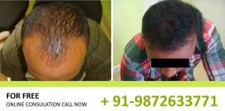 Hair Transplant Before After Results in Chandigarh