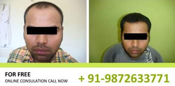 Hair Transplant Results in Chandigarh