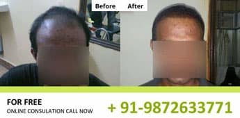 FUE Transplantation Results in Chandigarh