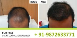 Before After Hair Transplant Result