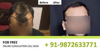 Hair Transplant Results in Delhi